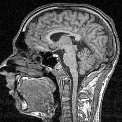 http://noustuff.files.wordpress.com/2009/11/fmri-scan_sectie_85.jpg